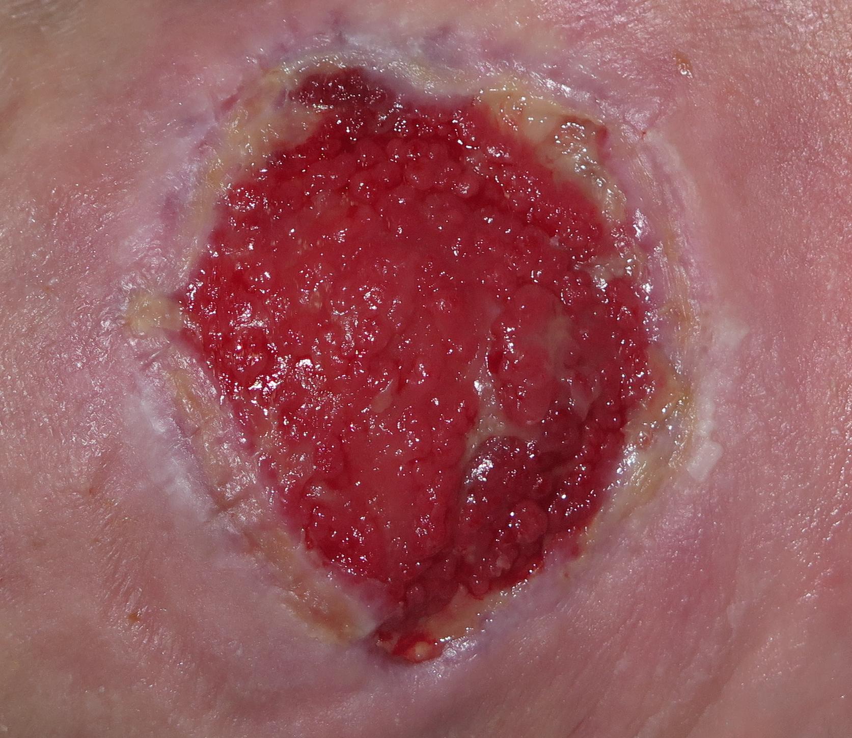 Hipergranulación 1