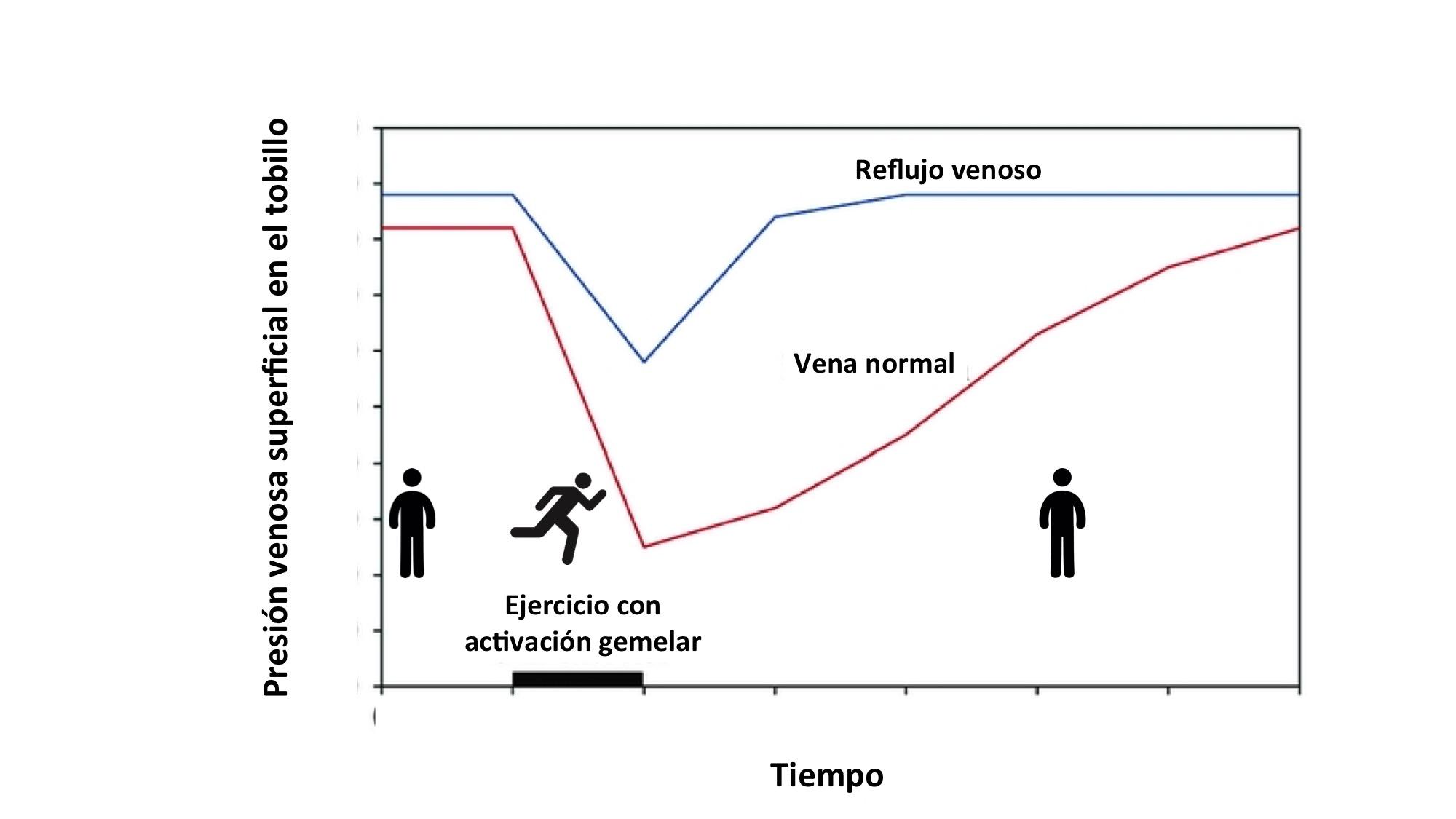 Esquema presión venosa durante el ejercicio (vena normal vs reflujo venoso)