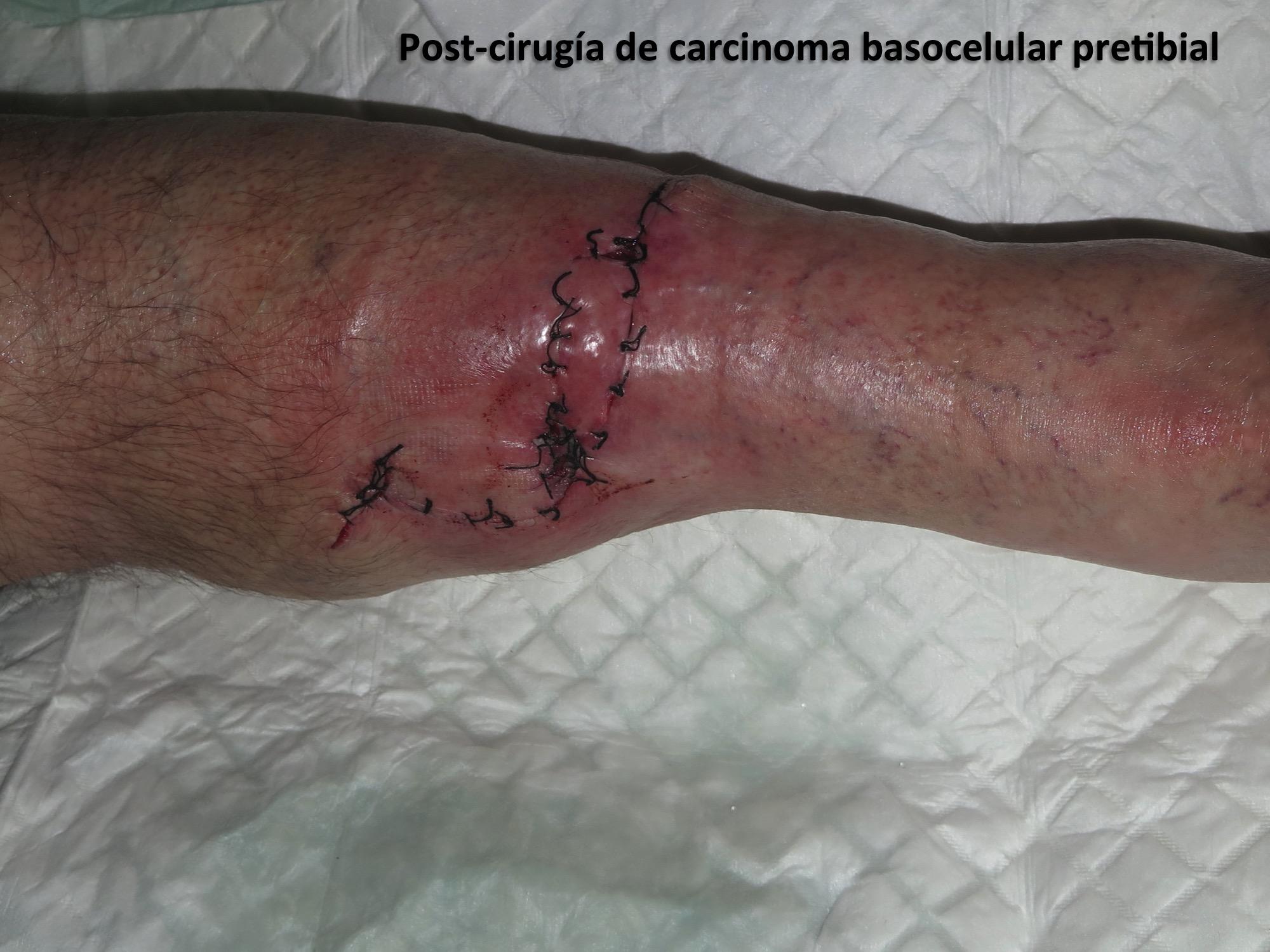 Post-cirugía de carcinoma basocelular pretibial