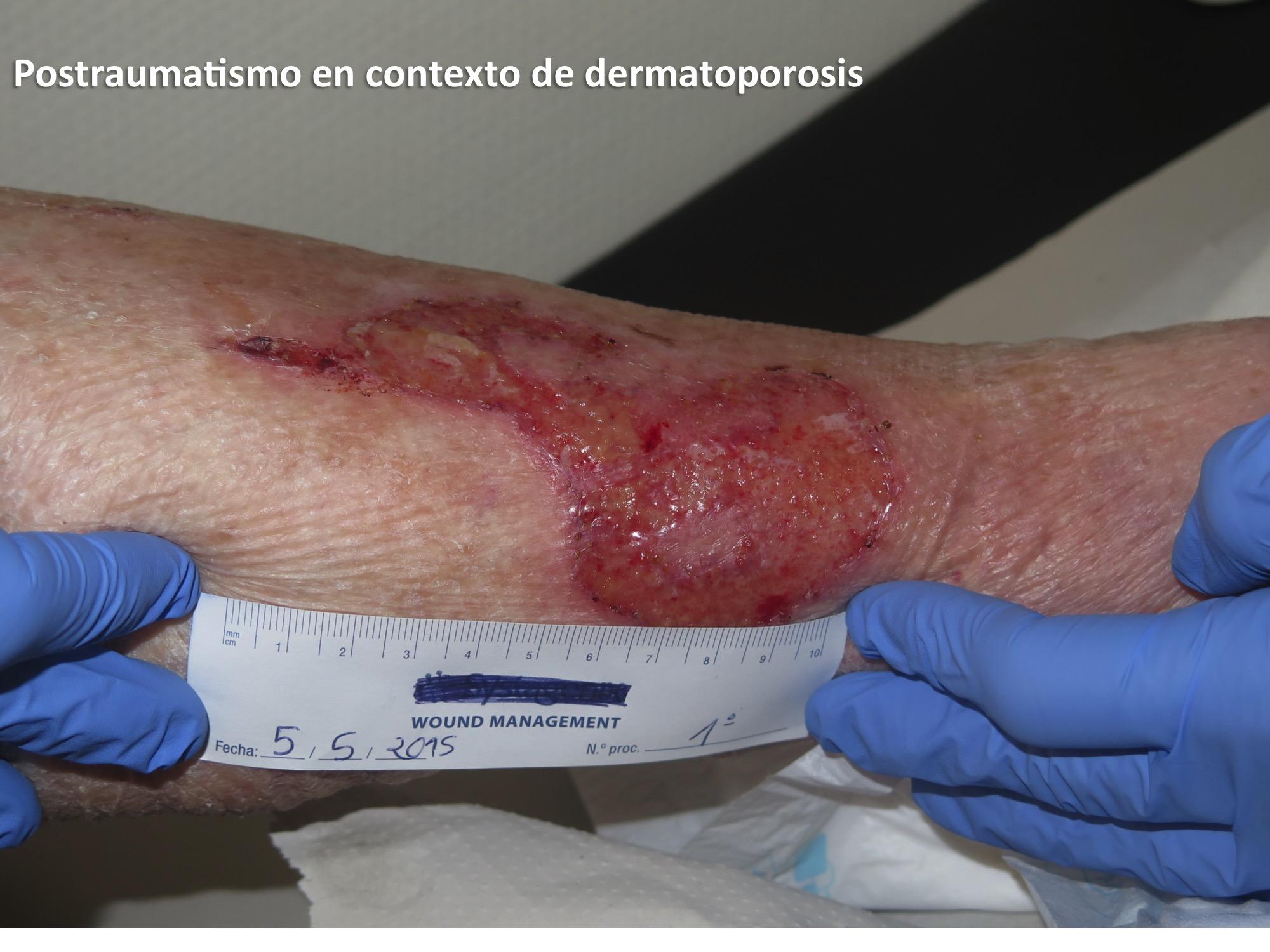 Postraumatismo en contexto de dermatoporosis