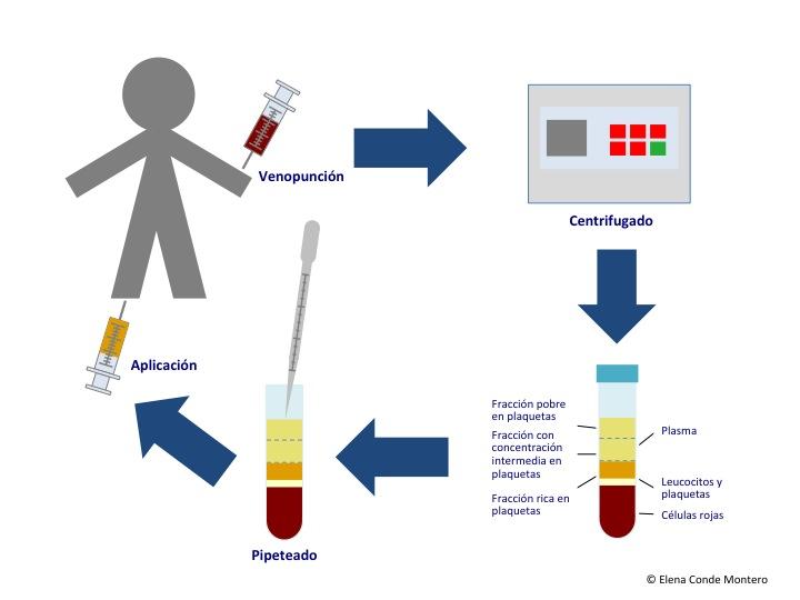 varicoză în invitro cum să vindecă doar varicoză