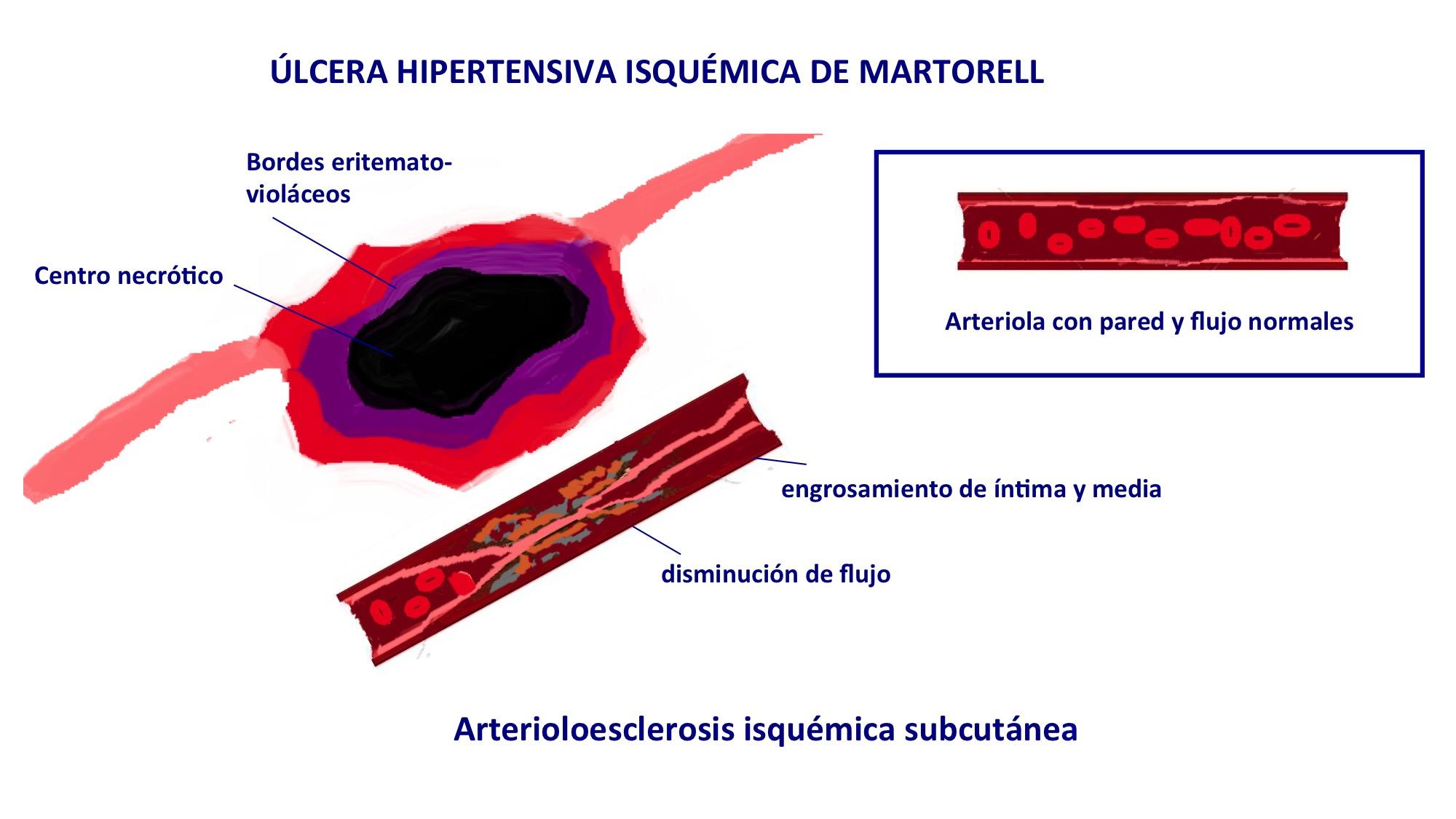 foto ulcera martorell