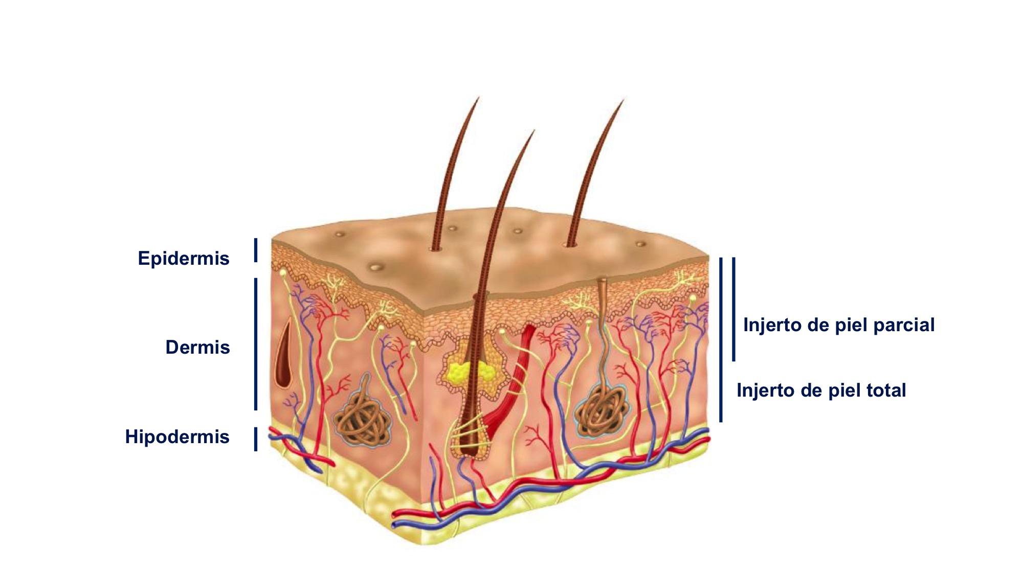 Tipos de injertos cutáneos para cubrir heridas crónicas: cuál elegir ...