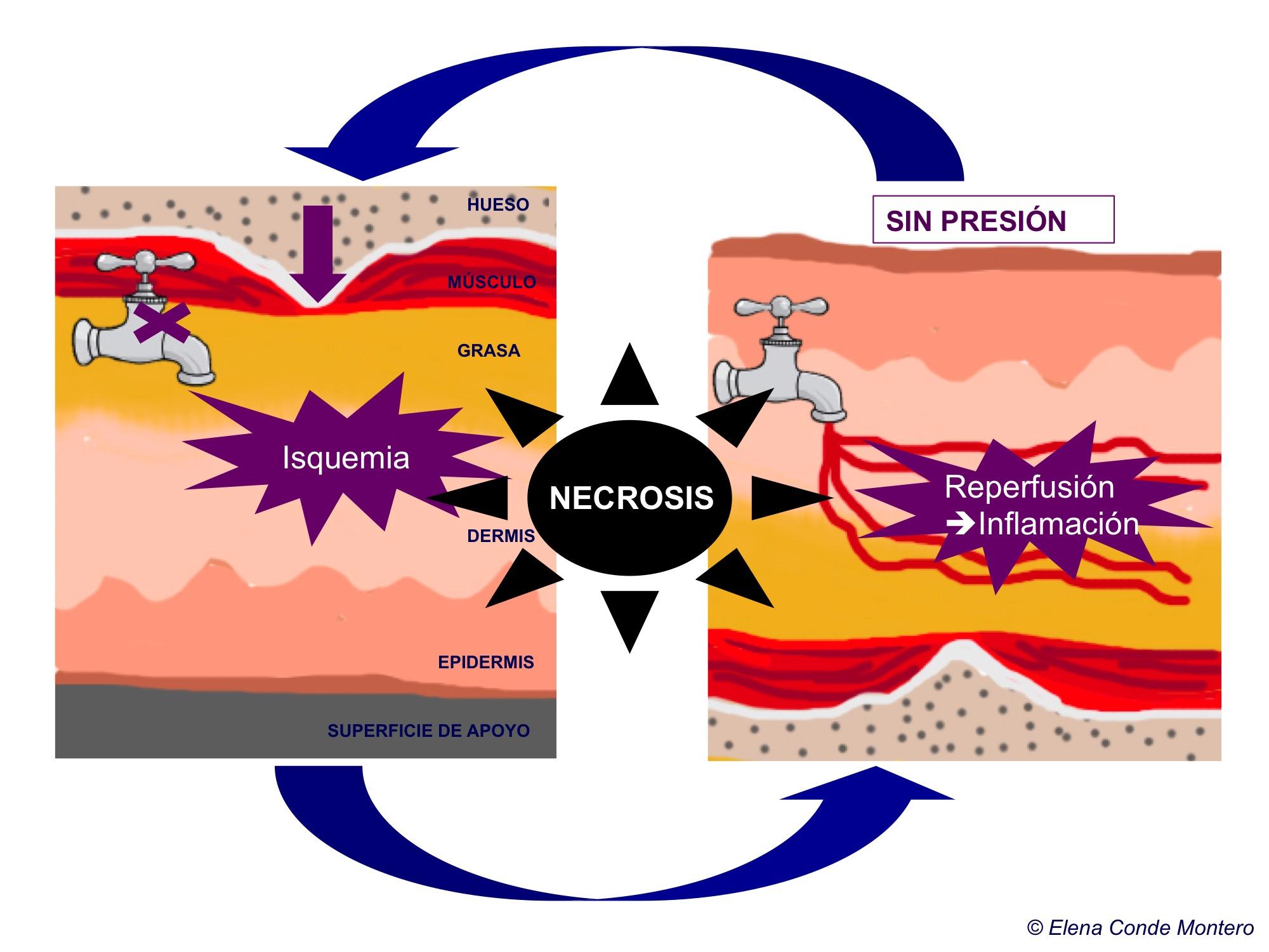 Ciclo isquemia-repercusión