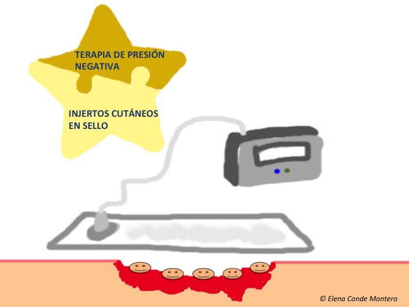 Terapia combinada injertos en sello + TPN