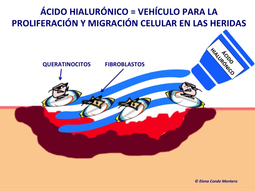 acido hialuronico aftas mexico