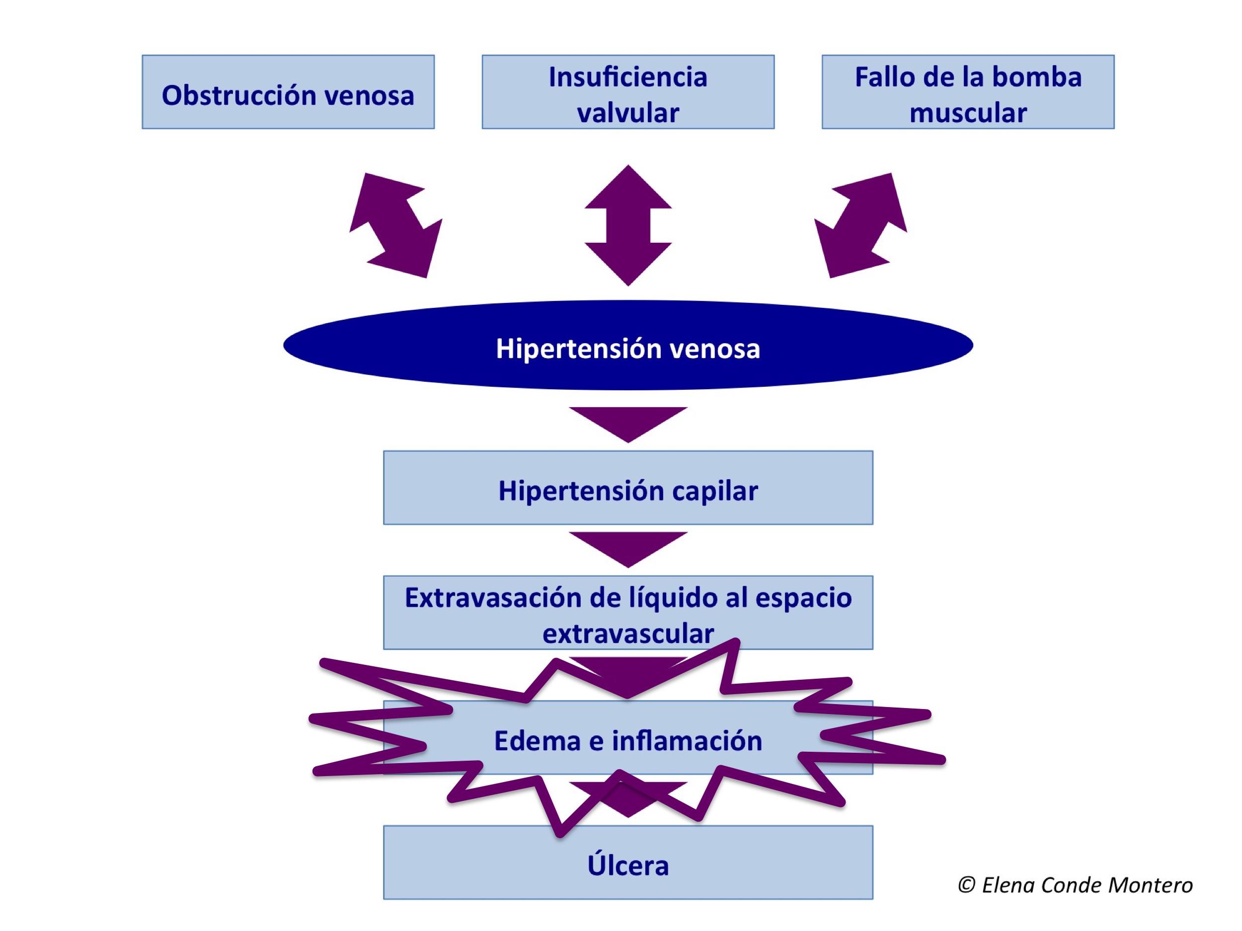 Definición de pacientes con hipertensión venosa