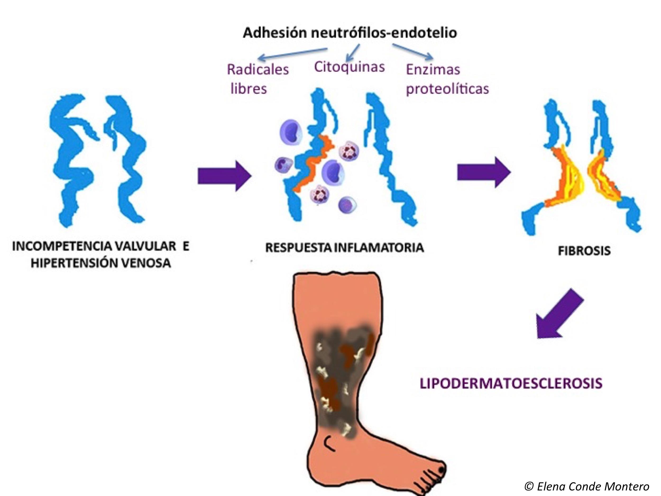 dermatitis por estasis cremas