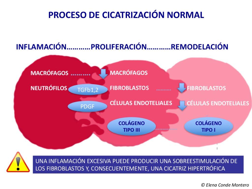 proceso normal de cicatrizacion