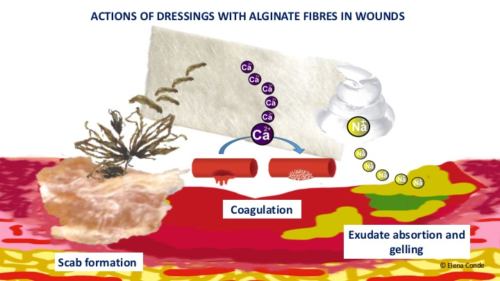 Why do we use so many alginate fibre sheets in our wound clinic? - Elena  Conde