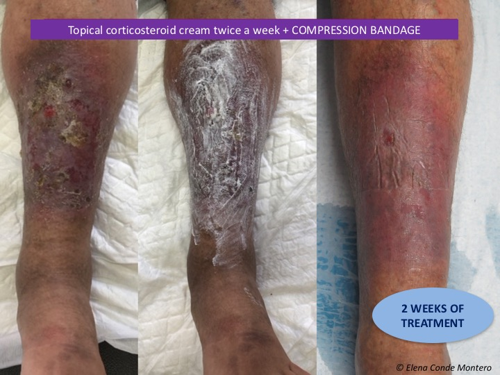 Topical steroids for stasis dermatitis pmr and gca steroids or bust